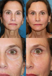 Lower Blepharoplasty Photo Gallery Gallery - Patient 2388451 - Image 1