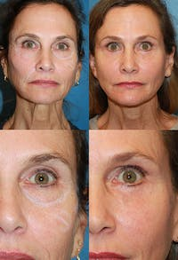 Eyelid Surgery (Blepharoplasty) Gallery - Patient 2158513 - Image 1
