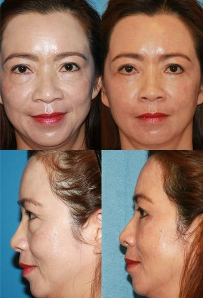Lower Blepharoplasty Photo Gallery Gallery - Patient 2388452 - Image 1