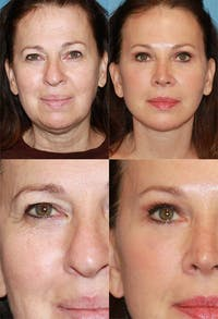Eyelid Surgery (Blepharoplasty) Gallery - Patient 2158515 - Image 1