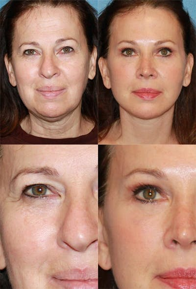 Lower Blepharoplasty Photo Gallery Gallery - Patient 2388453 - Image 1