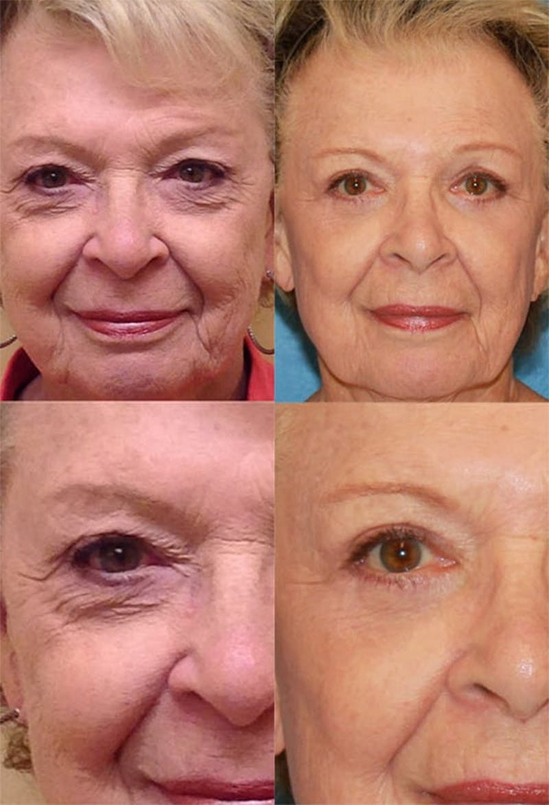 Eyelid Surgery (Blepharoplasty) Gallery - Patient 2158516 - Image 1