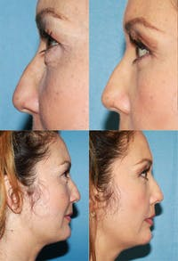 Eyelid Surgery (Blepharoplasty) Gallery - Patient 2158517 - Image 1