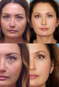 Eyelid Surgery (Blepharoplasty) Gallery - Patient 2158518 - Image 1
