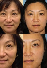 Eyelid Surgery (Blepharoplasty) Gallery - Patient 2158521 - Image 1
