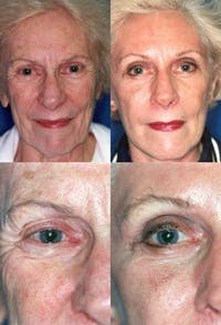 Eyelid Surgery (Blepharoplasty) Gallery - Patient 2158522 - Image 1