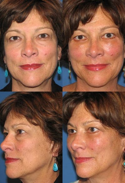 Lower Blepharoplasty Photo Gallery Gallery - Patient 2388458 - Image 1