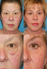 Eyelid Surgery (Blepharoplasty) Gallery - Patient 2158530 - Image 1
