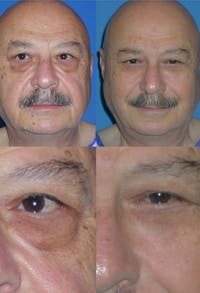 Eyelid Surgery (Blepharoplasty) Gallery - Patient 2158531 - Image 1
