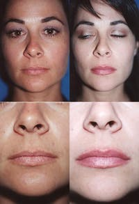 Lip Augmentation Gallery - Patient 2158533 - Image 1