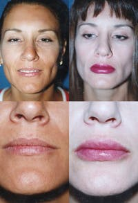 Lip Augmentation Gallery - Patient 2158534 - Image 1