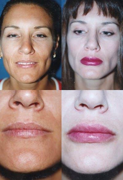 Lip Augmentation Gallery - Patient 2158534 - Image 1