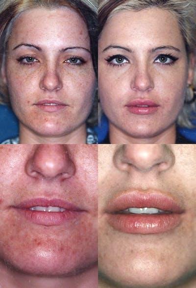 Lip Augmentation Gallery - Patient 2158536 - Image 1