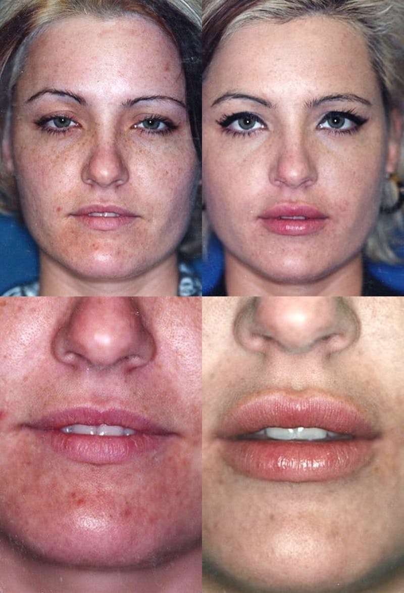 Lip Augmentation Gallery - Patient 2158536 - Image 1