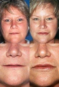 Lip Augmentation Gallery - Patient 2158537 - Image 1