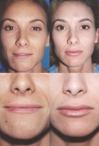 Lip Augmentation Gallery - Patient 2158538 - Image 1