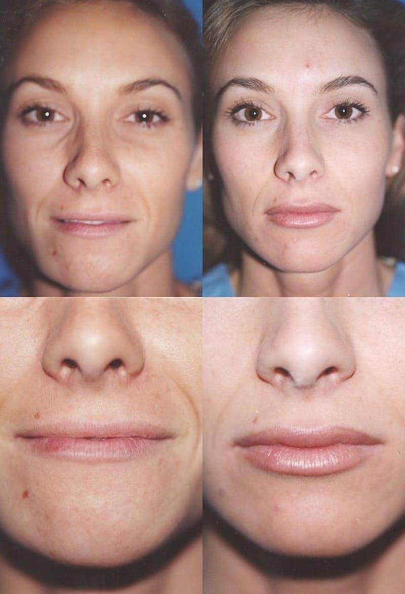 Lip Augmentation Gallery - Patient 2158538 - Image 1