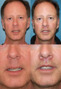 Lip Lift Gallery - Patient 2158564 - Image 1