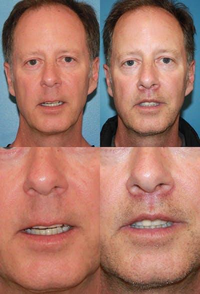 Lip Lift Gallery - Patient 2158564 - Image 1