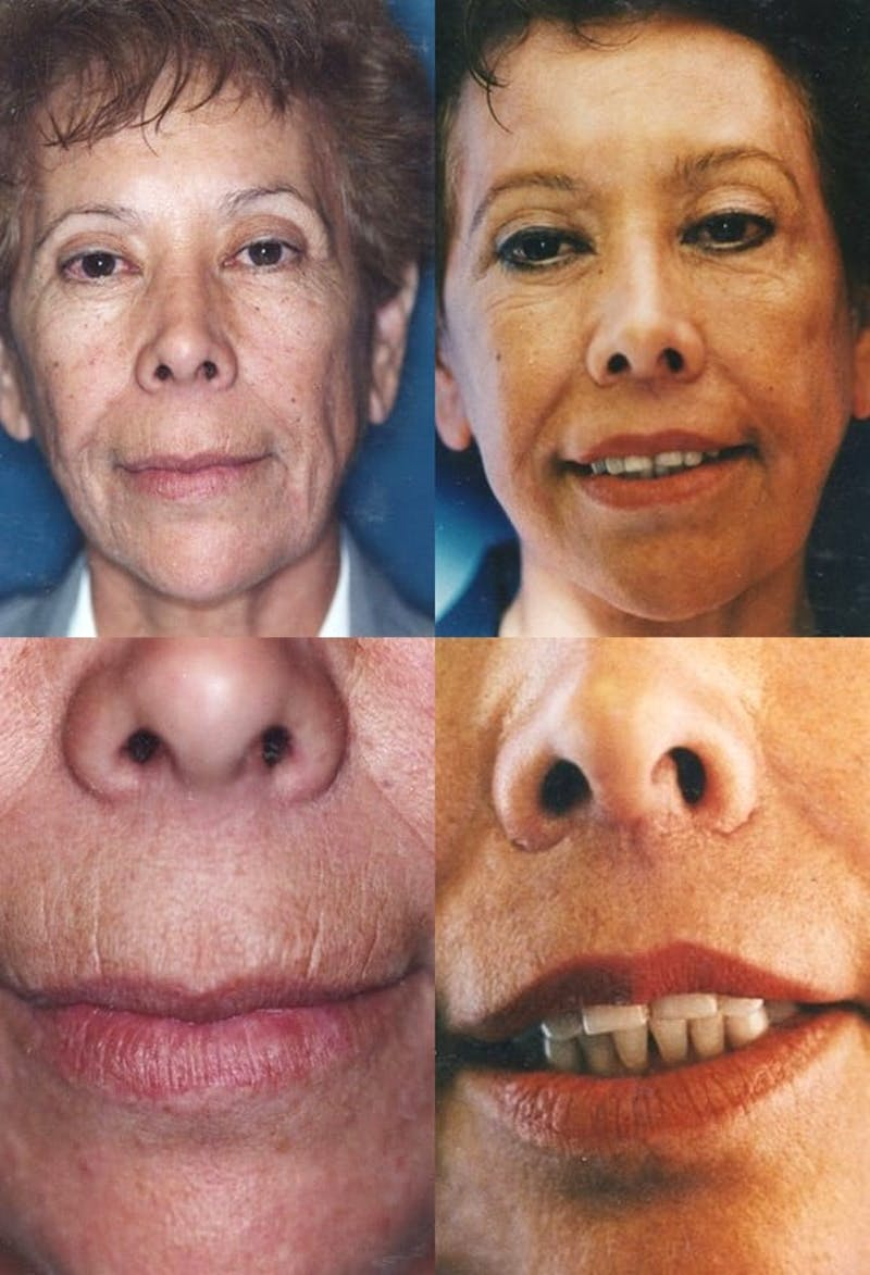 Lip Lift Gallery - Patient 2158565 - Image 1