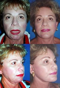 Lip Lift Gallery - Patient 2158567 - Image 1
