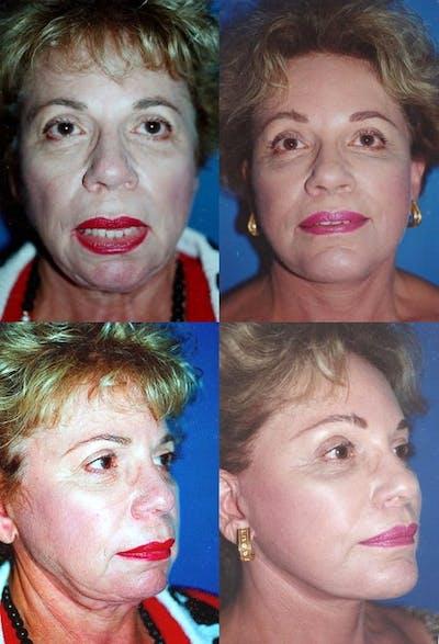 Lip Lift Gallery - Patient 2158567 - Image 1