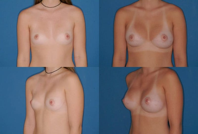 Large B Cup Augmentation Gallery - Patient 2387826 - Image 1