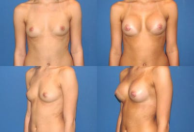Breast Augmentation Gallery - Patient 2158589 - Image 1