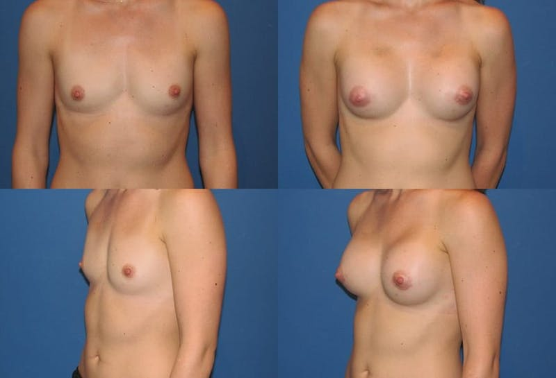 Large B Cup Augmentation Gallery - Patient 2387828 - Image 1