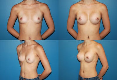 Breast Augmentation Gallery - Patient 2158591 - Image 1