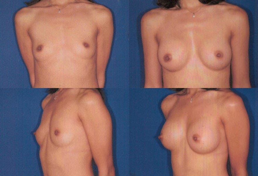 Before and After Photos of Breast Augmentation in San Diego by Dr. Chasan
