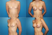 Breast Augmentation Gallery - Patient 2158593 - Image 1