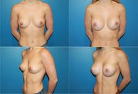 Small C Natural Shape Breast Gallery - Patient 2387849 - Image 1