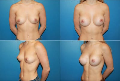 Breast Augmentation Gallery - Patient 2158594 - Image 1