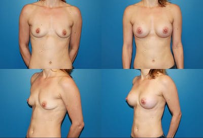 Breast Augmentation Gallery - Patient 2158595 - Image 1