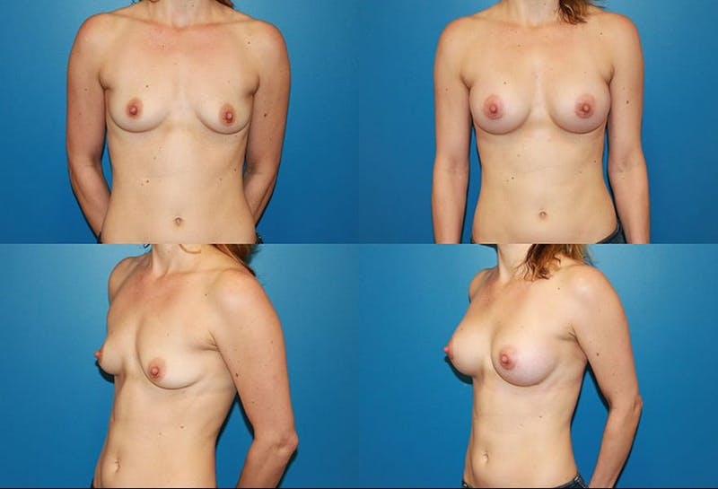 Small C Natural Shape Breast Gallery - Patient 2387850 - Image 1