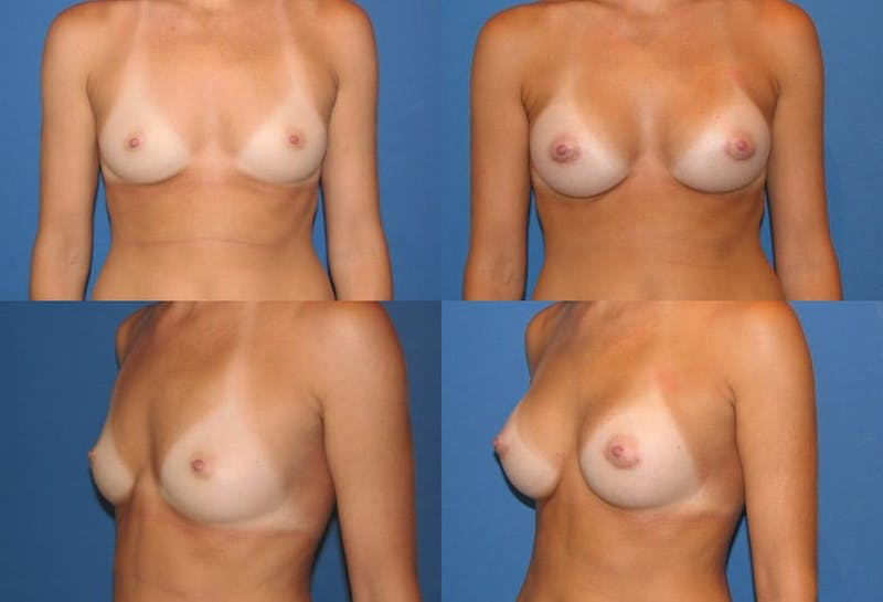 Small C Natural Shape Breast Gallery - Patient 2387851 - Image 1