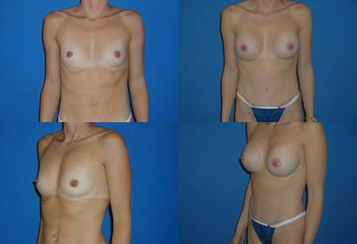 Breast Augmentation Gallery - Patient 2158599 - Image 1