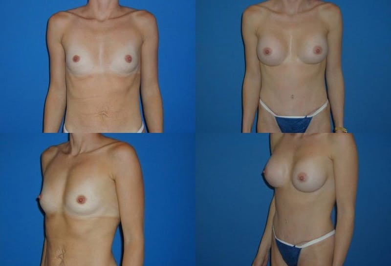 Small C Natural Shape Breast Gallery - Patient 2387852 - Image 1