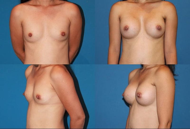 Small C Natural Shape Breast Gallery - Patient 2387853 - Image 1