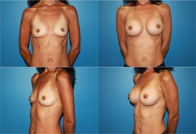 Breast Augmentation Gallery - Patient 2158602 - Image 1