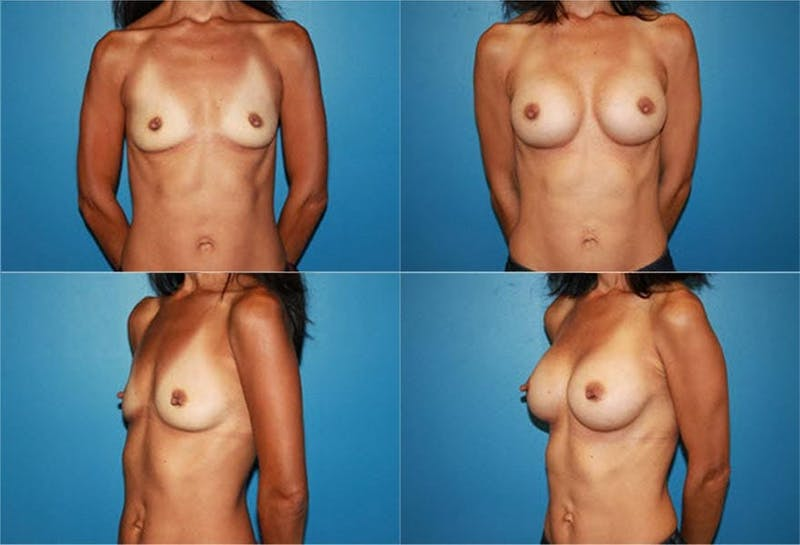 Small C Round Breast Gallery - Patient 2387923 - Image 1