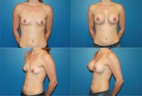 Small C Round Breast Gallery - Patient 2387924 - Image 1