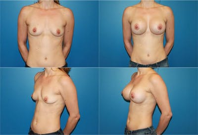 Breast Augmentation Gallery - Patient 2158603 - Image 1