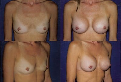 Breast Augmentation Gallery - Patient 2158604 - Image 1
