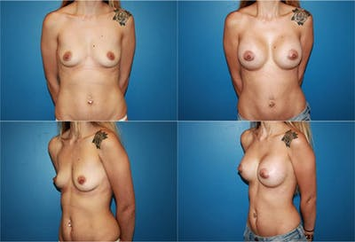 Breast Augmentation Gallery - Patient 2158605 - Image 1