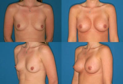 Breast Augmentation Gallery - Patient 2158606 - Image 1