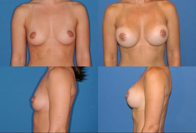 Breast Augmentation Gallery - Patient 2158607 - Image 1