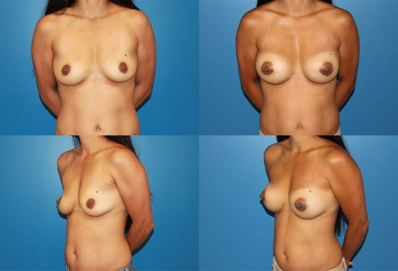 Medium C Natural Shape Breast Gallery - Patient 2387935 - Image 1