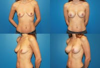 Medium C Natural Shape Breast Gallery - Patient 2387936 - Image 1